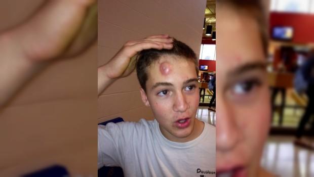 FOTO: Sorprende acné de jovencito en EU
