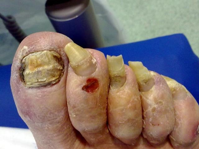 3 de cada 10 mexicanos tienen hongos en las uñas; 80% sin atenderse ...