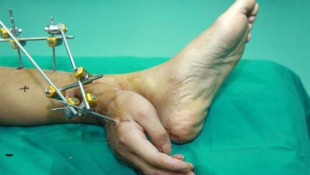FOTOS: Le injertan la mano en el pie