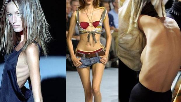 La nueva tendencia entre modelos para bajar de peso: malla adelgazante