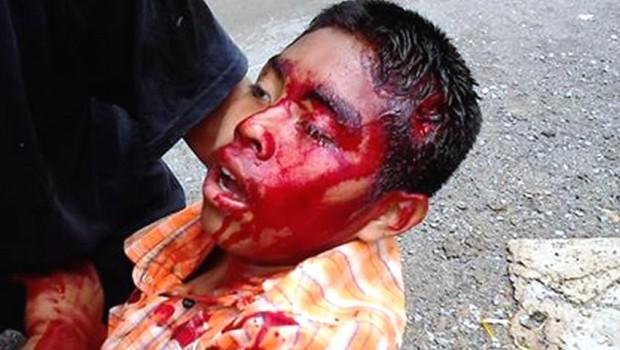 Muere niño presuntamente herido por una bala de goma en San Bernardino Chalchihuapan